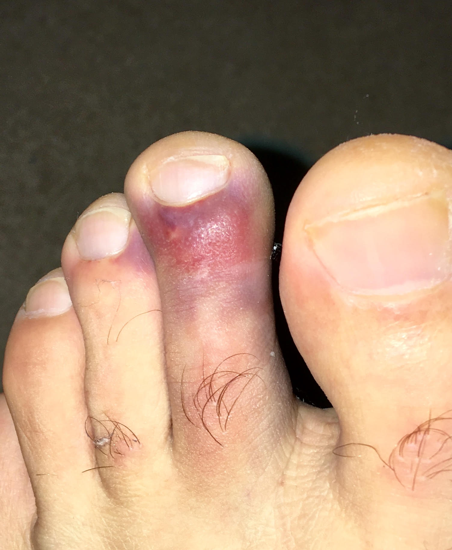 Giving Thanks for My Broken Toe: Being Swept Up in the Ocean of Good